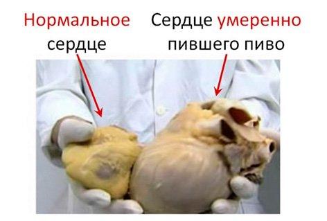 Ростов на дону клиника лечения от алкоголизма