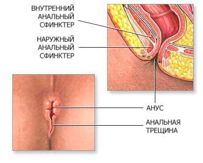 Крови в кале. анальный зуд. и. боль в области ануса. в процессе дефекации.
