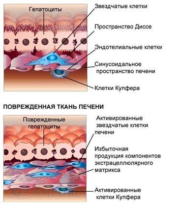 HbеAg - определяется в крови