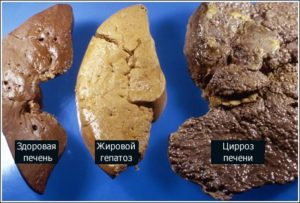 Как выглядит цирроз печени