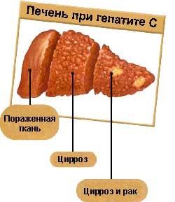 Печень при гепатите C