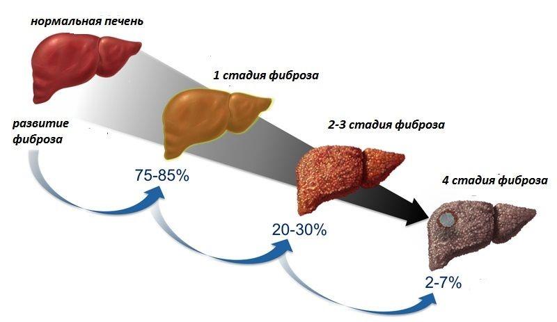 Фиброз печени - иллюстрация